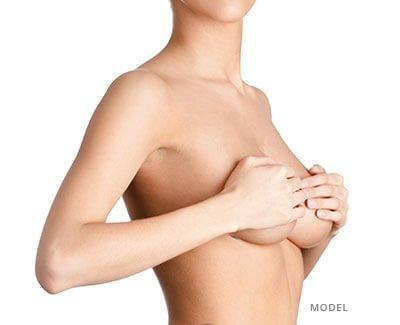 Breast Augmentation Option Image