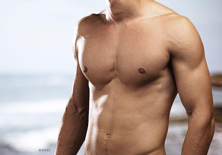 Liposuction for Men Model